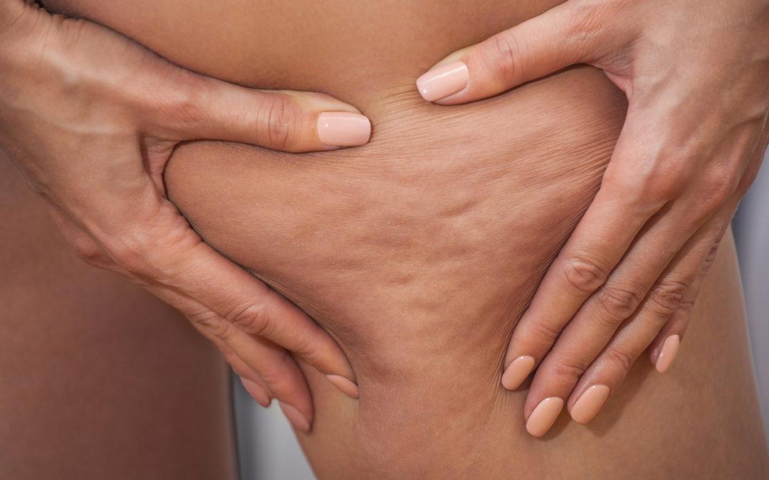 Le lifting colombien est-il efficace pour traiter la cellulite